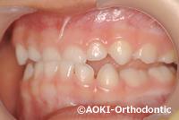 乳歯の反対咬合
