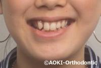 ガタガタ 歯並び 叢生